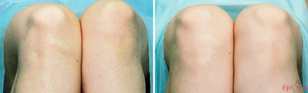 Результатылазерного облученияпосле первой процедурывиднына фото до и после