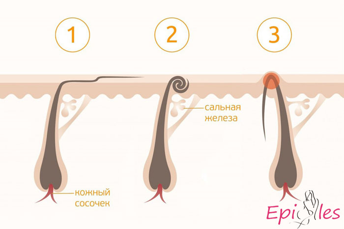 вросшие волосы после шугаринга