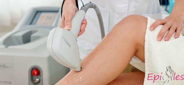 Сколько процедур лазерной эпиляции нужно для полного удаления