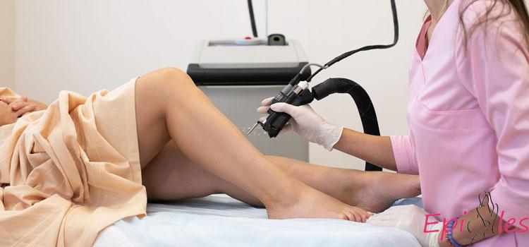 фото лазерная эпиляция ног