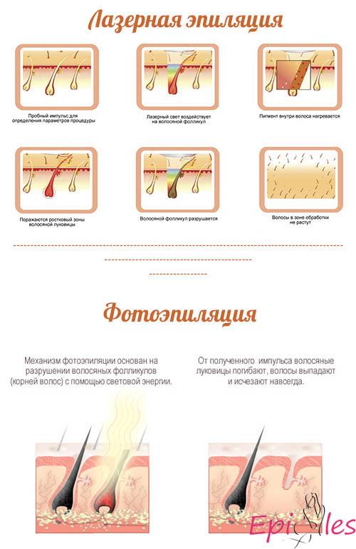 Лазерная эпиляция и фотоэпиляция: отличия