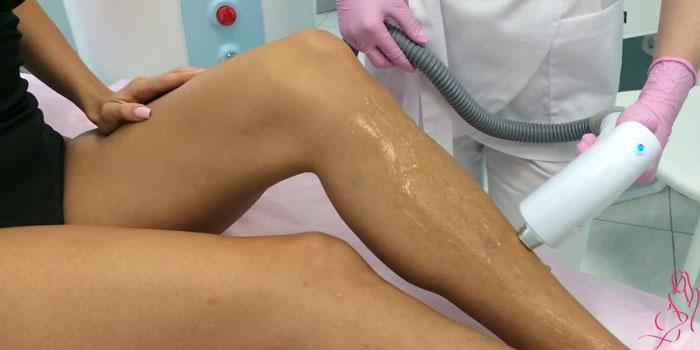 Как подготовиться к первой процедуре лазерной эпиляции