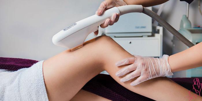 Сколько стоит лазерная эпиляция ног полностью