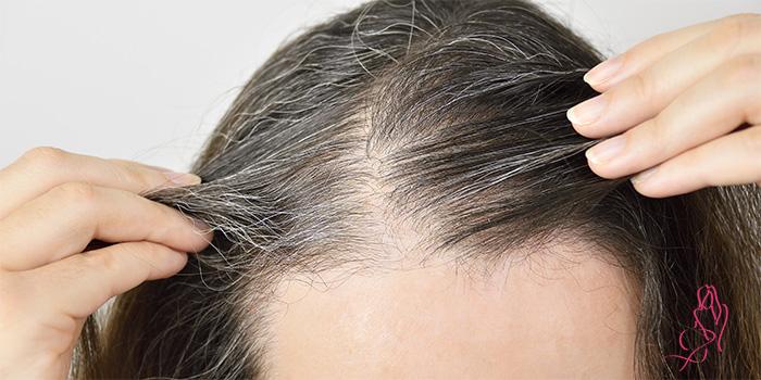 Почему нельзя выдергивать седые волосы на голове