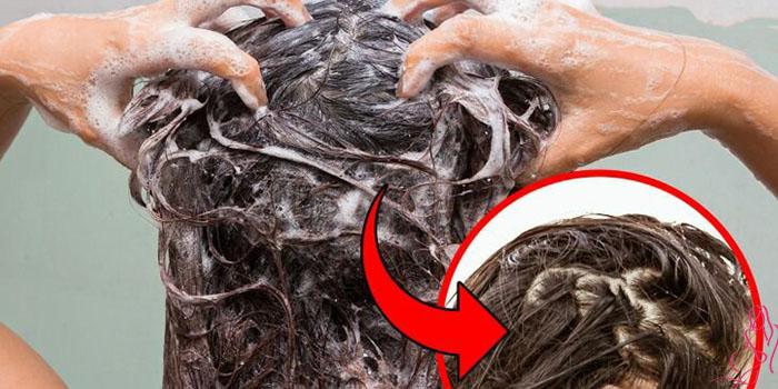 Почему при мытье головы выпадает много волос